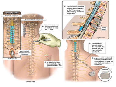 Placement of Spinal Cord Stimulator