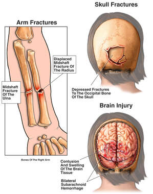 Injuries to the Head and Forearm of a Child