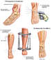 Tibial and Fibular Fracture Fixation