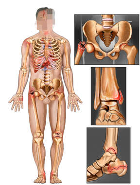 Male Figure with Orthopedic Fractures to the Hip, Ankle and Foot