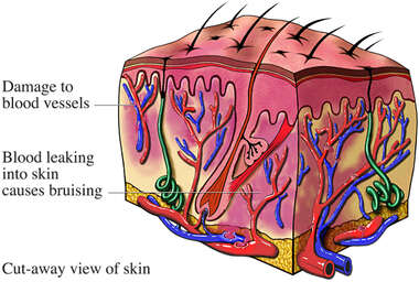 Contusion of Skin
