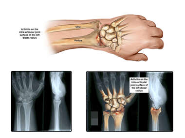 Post Operative Arthritis with Film