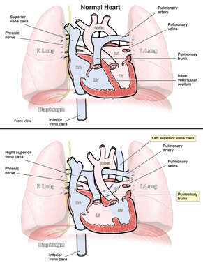 Abnormal Variation in Heart Anatomy