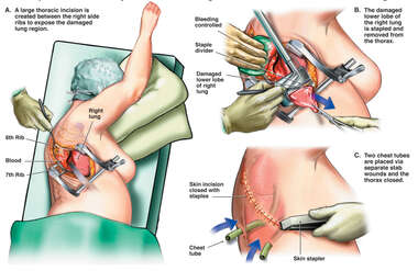 Open Thoracotomy with Partial Lung Resection and Control of Bleeding