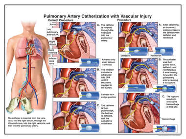 Cardiac Catherization with Vascular Injury
