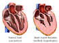 Hypertrophy of Heart Muscle