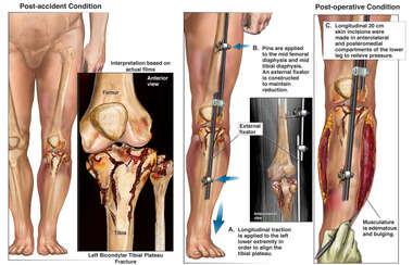 Left Tibial Plateau Fractures with Initial Surgical Repairs