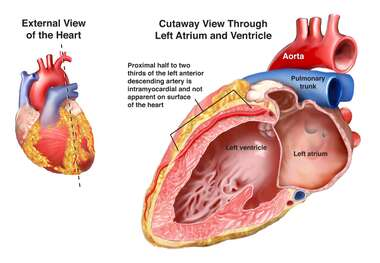 External View of the Heart- Coronary Arteries