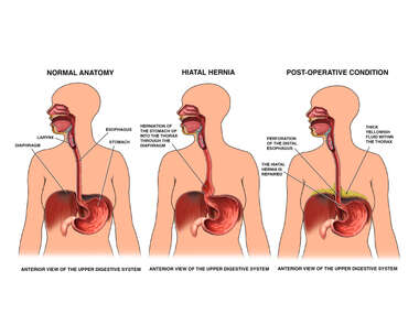 Normal Esophageal Anatomy vs. Hiatal Hernia and Esophageal Perforation