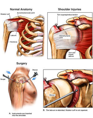 Right Shoulder Injuries with Initial Surgical Repairs