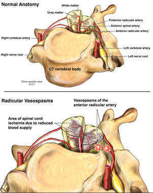 Radicular Vasospasms