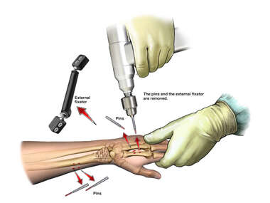 Left Wrist Fixator Removal