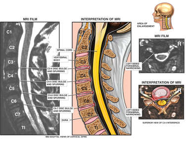 Cervical Disc Abnormalities