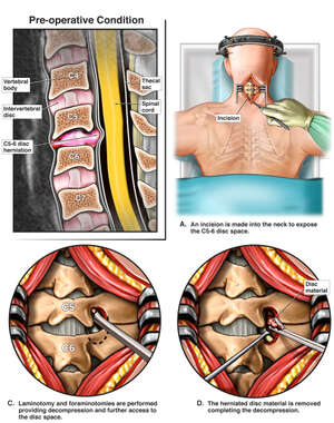 Cervical Disc Herniation with Surgical Discectomy