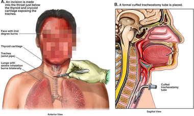 Emergency Tracheostomy Procedures