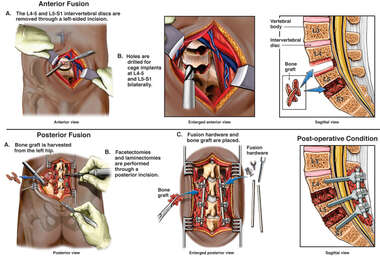 Lumbar Discectomy and Fusion