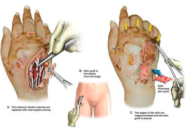 Tendon Repair and Skin Graft Closure of Right Hand Wound