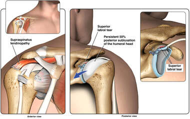 Condition of the Right Shoulder