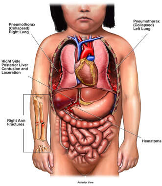 Traumatic Organ Injury to Child