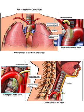 Placement of Tracheostomy Tube
