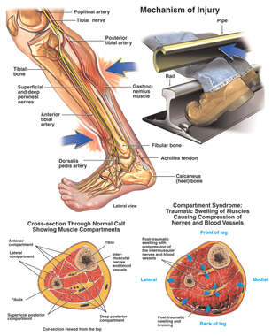 Compartment Syndrome of the Lower Legs