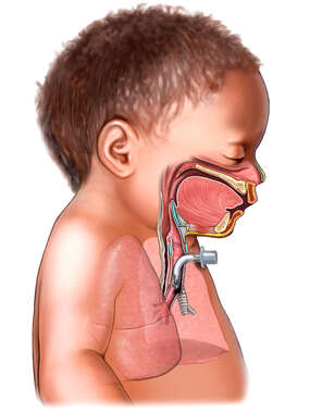 Infant with Tracheostomy Tube