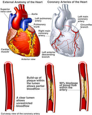 Heart - Coronary Arteries with Potential Blockages