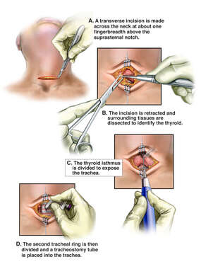 Tracheostomy Procedure