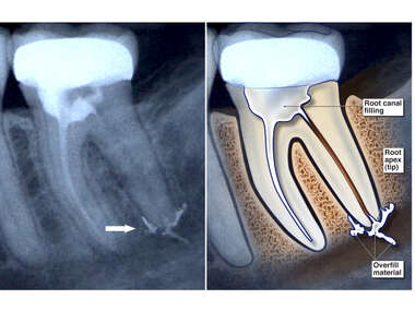 Root Canal Overfill