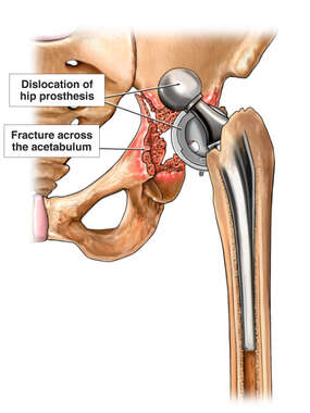 Hip Fracture and Dislocation