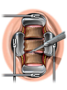Anterior Cervical Disc Incision and Discectomy