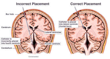 Brain Surgery - Placement of Intraventricular Catheter