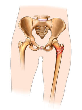 Hip Fracture in a Child