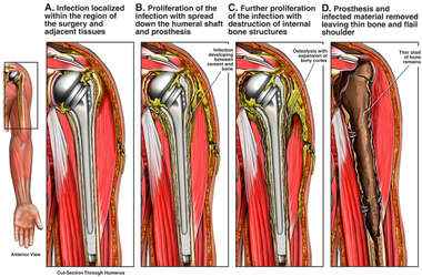 Possible Post-operative Complications of a Total Shoulder Replacement
