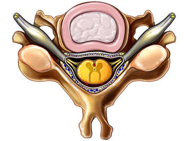 Cervical Vertebra with Spinal Cord: Superior View