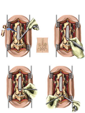 L3-4, L4-5 Laminectomy, Facetectomy, Foraminotomy and Discectomy Procedures