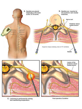 Radiofrequency Ablations of the Thoracic Medial Branches
