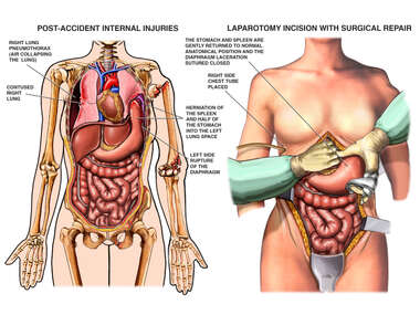 Internal Injuries with Surgical Repairs