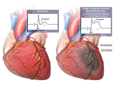 STEMI Heart Attack