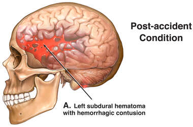 Lateral Skull and Brain with Post-accident Hematoma
