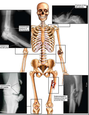 Skeletal Figure with X-Ray Films of Fractures to the Collar Bone, Elbow, Femur and Knee