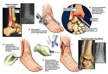 Right Ankle Injuries with Surgery