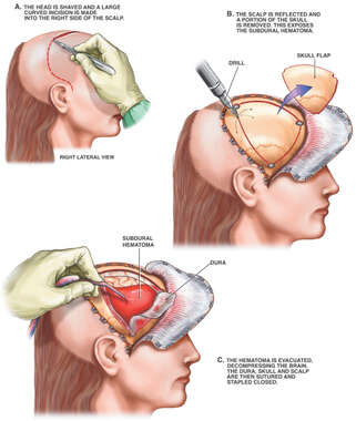 Decompression of Subdural Hematoma
