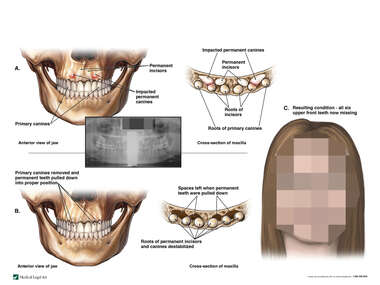 Impacted Permanent Teeth, Attempted Repair and Eventual Tooth Loss