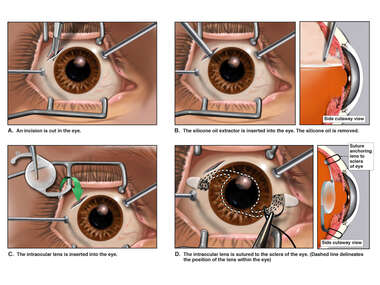 Scleral Sutured Intraocular Lens
