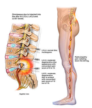 Lumbar Discograms to Diagnose Lumbar Disc Injury