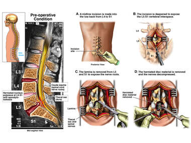 Lumbar Disc Herniation with Surgical Procedure