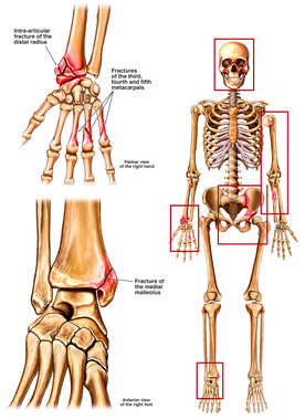 Anterior Skeleton  with Fractures to the Wrist, Skull, Arm, Hip and Ankle