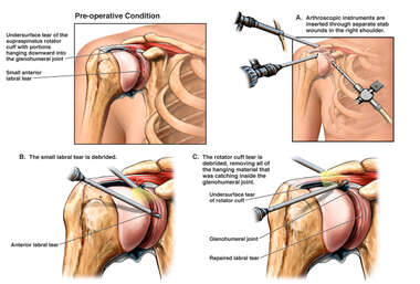 Arthroscopic Debridement of Right Rotator Cuff Tear
