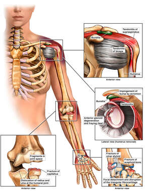 Left Female Upper Extremities with Complex Shoulder, Elbow and Wrist Injuries